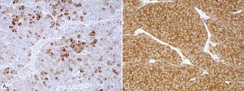 Thymic Neuroendocrine Carcinoma (NEC)/Tumor - Thoracic