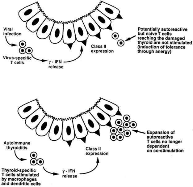 Chronic Autoimmune Thyroiditis - Werner & Ingbar's The