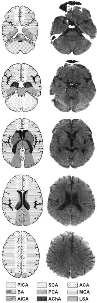 Major Ischemic Stroke Syndromes - Catastrophic Neurologic