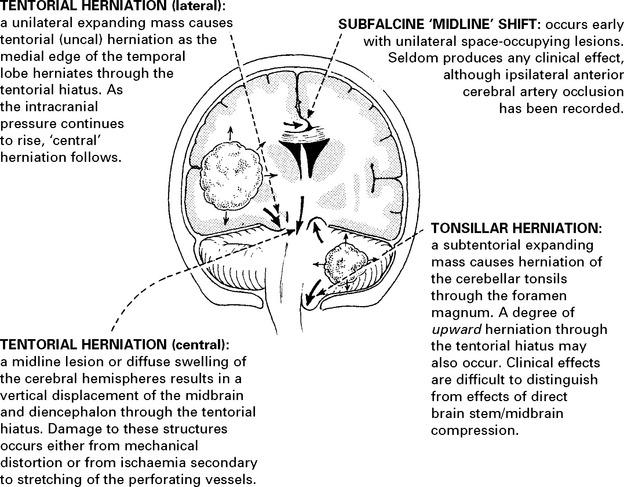 MRI Abbreviations
