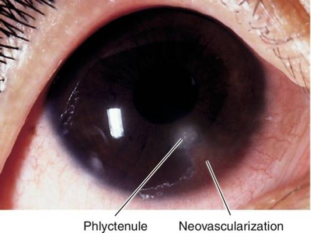 conjunctiva and sclera