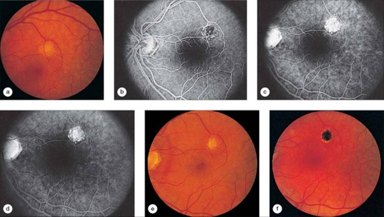 Click To View Full Size Figure  Presumed Ocular Histoplasmosis Syndrome