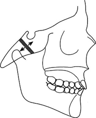 Facial Growth N E Carter An Introduction To Orthodontics 2nd Edition Hyaline cartilage joins 2 ossifying centers of bone sight motion. facial growth n e carter an