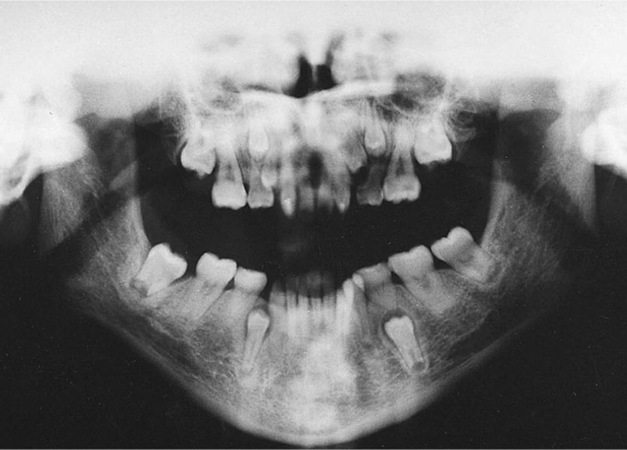 Eruption and Shedding of Teeth - Pediatric Dentistry - a ...