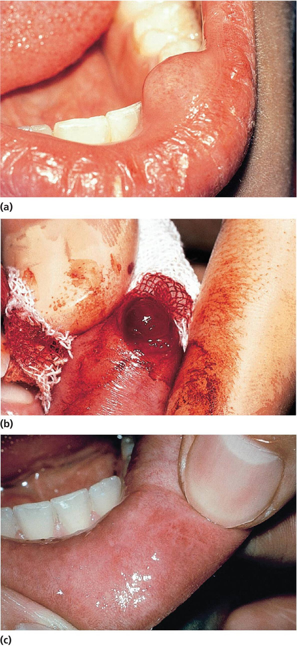 Oral cyst pictures — photo 6