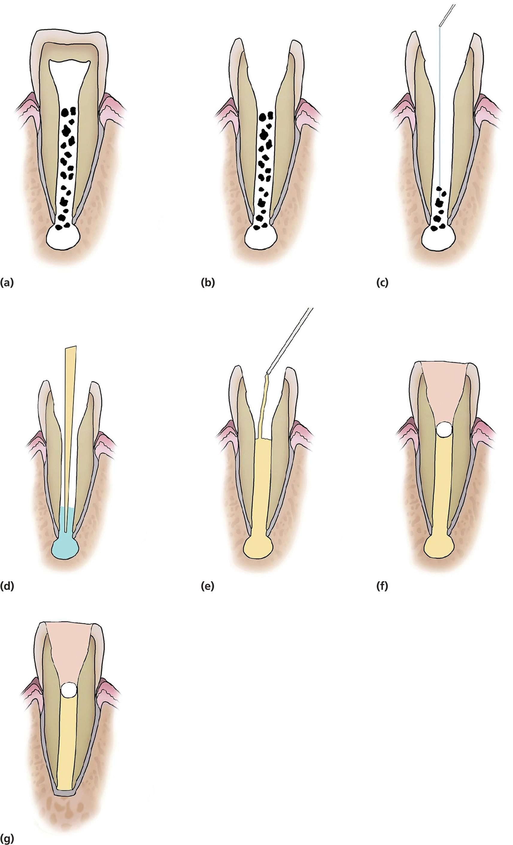 pulp therapy of immature permanent teeth