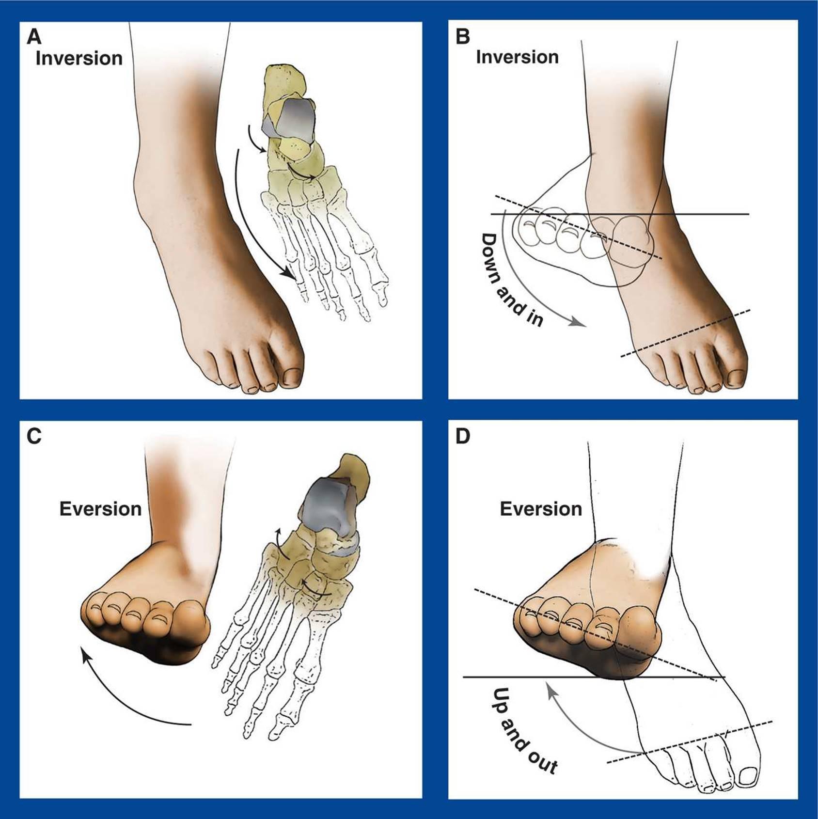 BASIC PRINCIPLES - Principles and Management of Pediatric Foot and ...