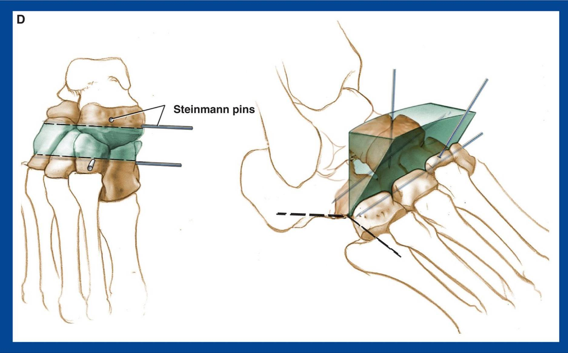 ARTHRODESES - BONE PROCEDURES - Principles and Management of ...