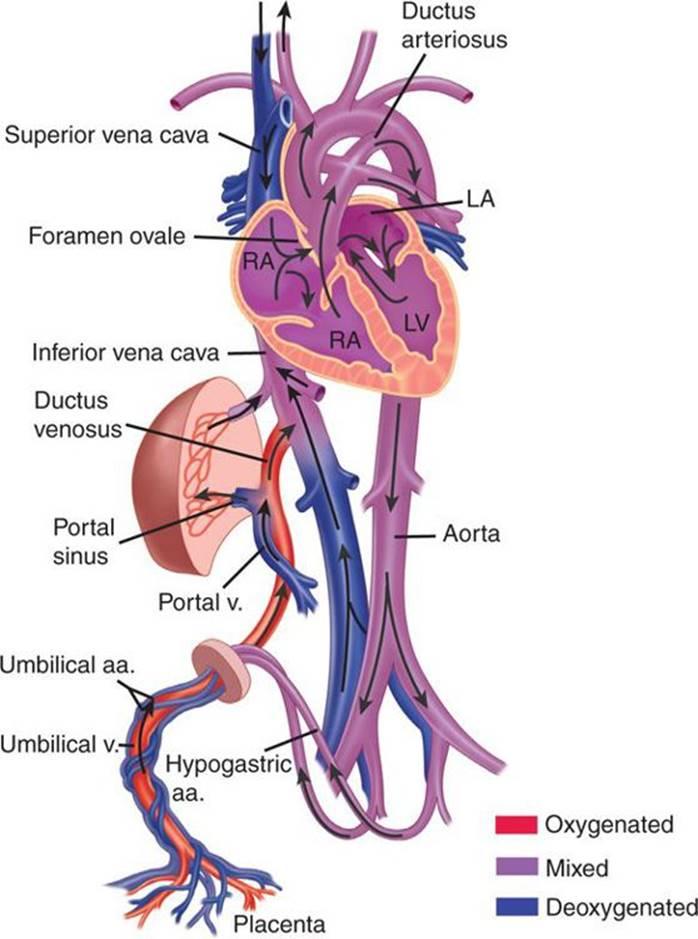 Congenital Heart Disease - Strange and Schafermeyer\'s Pediatric ...