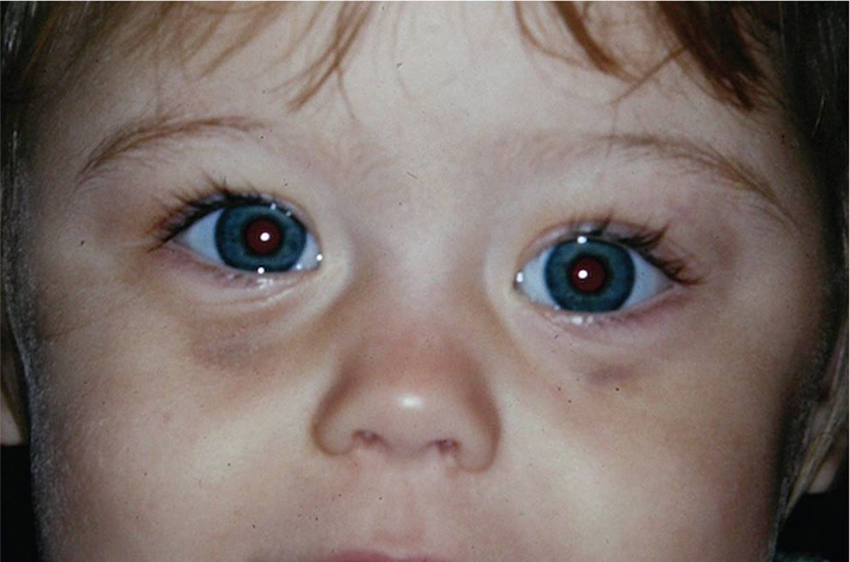 Discoloration of/Around the Eye - Visual Diagnosis and ...