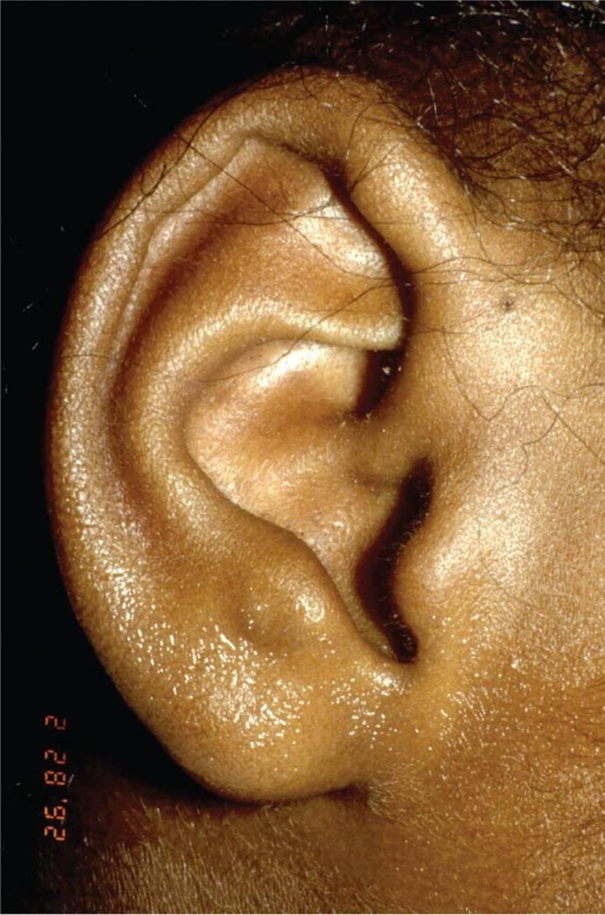 Ear Pits and Tags - Visual Diagnosis and Treatment in Pediatrics, 3 Ed