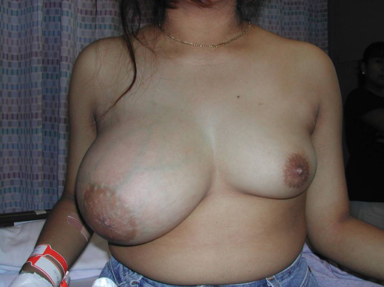 Nude diabetic swelling — pic 5