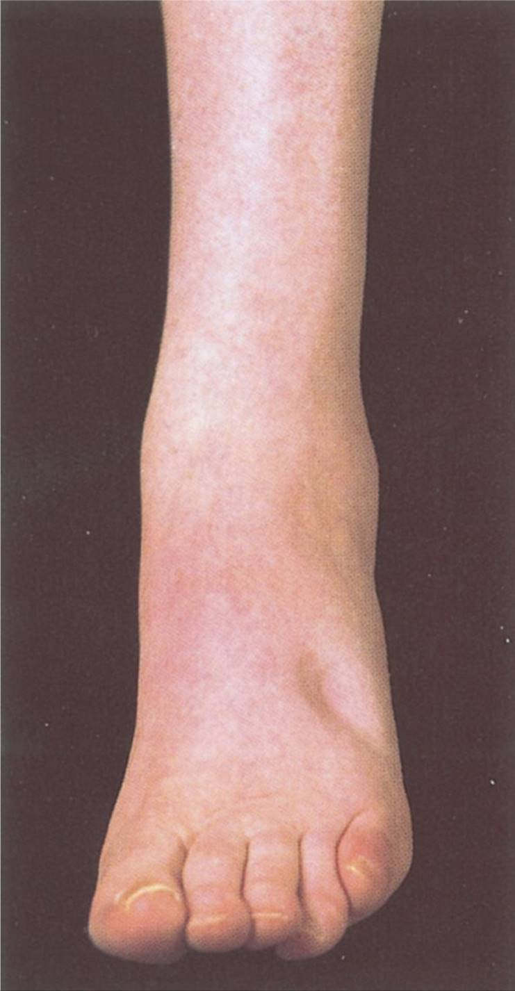 Foot Swelling - Visual Diagnosis and Treatment in Pediatrics