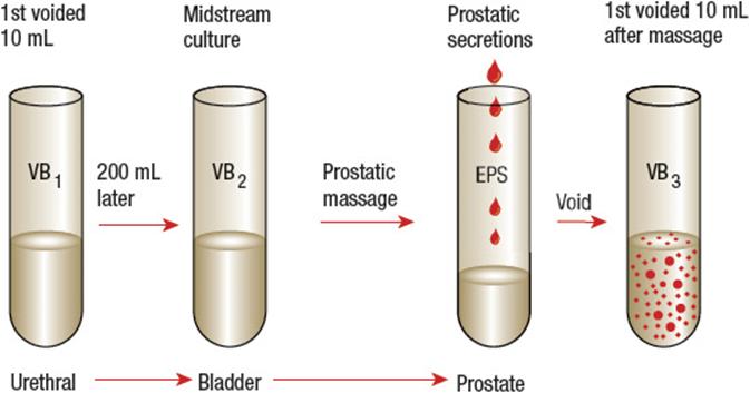 Talán a prostatitis betegből Krónikus prosztatitis kezelésére szolgáló eszköz