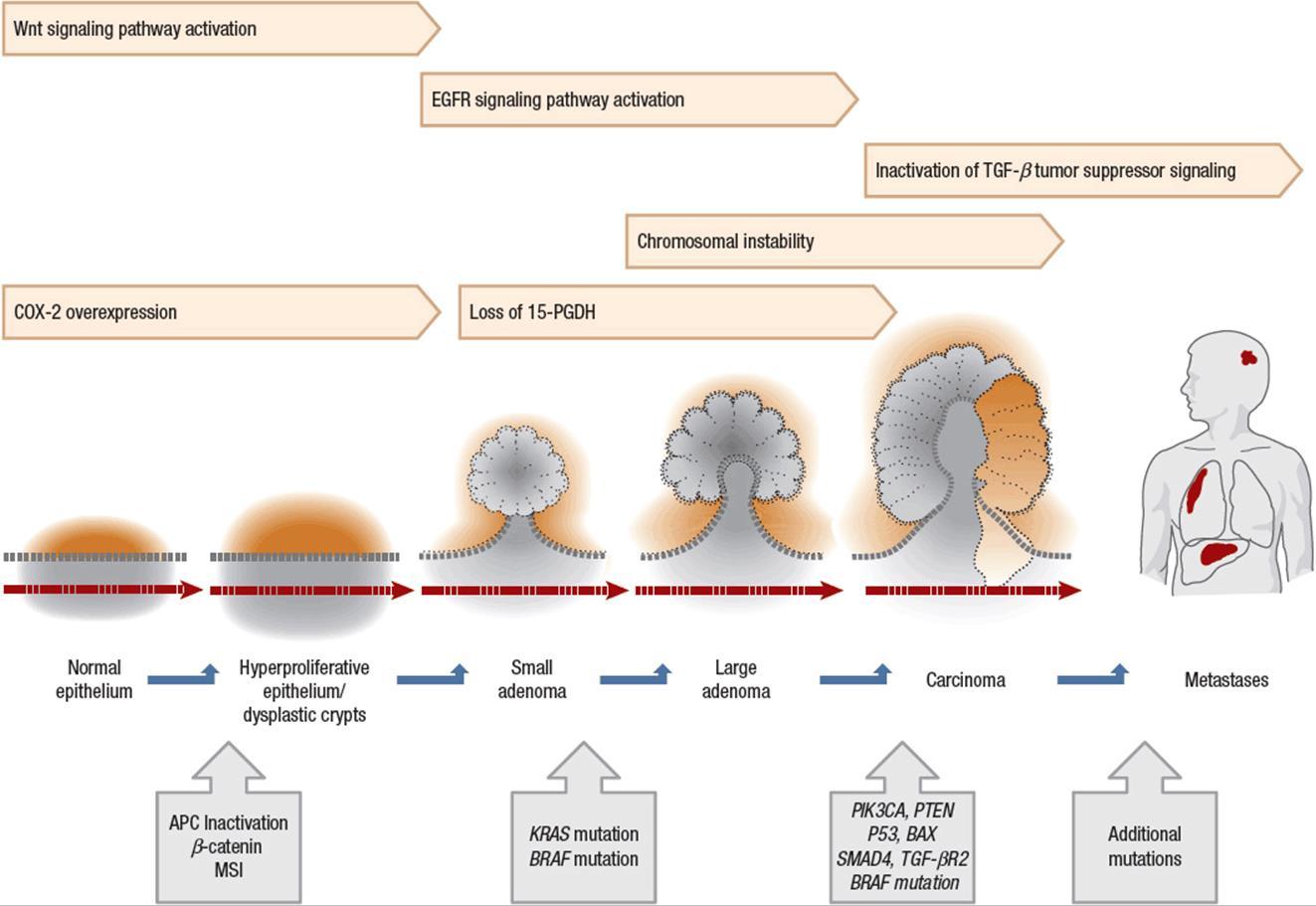 rectal cancer pathophysiology