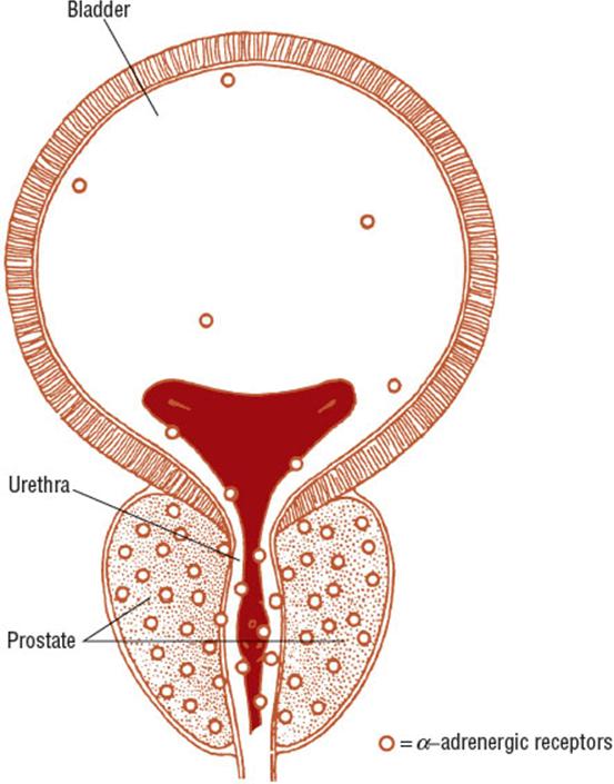 Vesicar Prostate Vélemények Prostatitis és kezelés