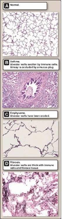 Lung Mechanics - Lippincott Illustrated Reviews: Physiology