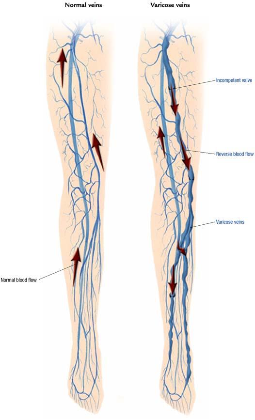 Varicose Veins Atlas Of Pathophysiology 2 Edition