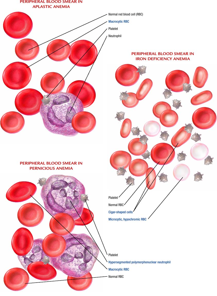 Anemia - Atlas of pathophysiology, 2 Edition B12 Deficiency Smear