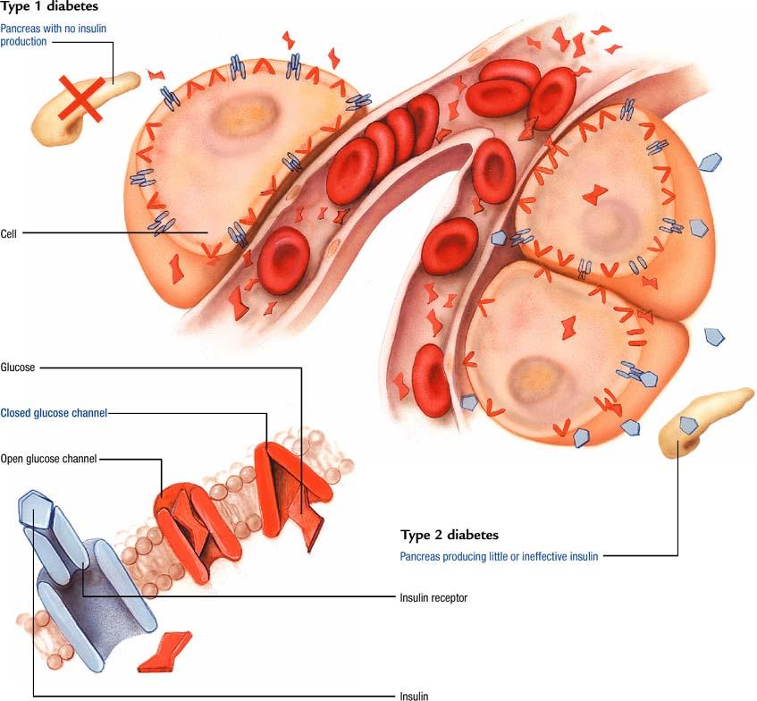 Diabetes mellitus - Atlas of pathophysiology, 2 Edition