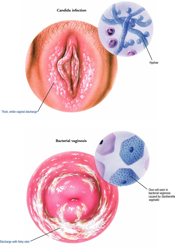 Acidic vaginal discharge