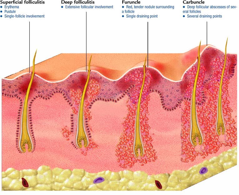 Folliculitis, furuncles, carbuncles - Atlas of