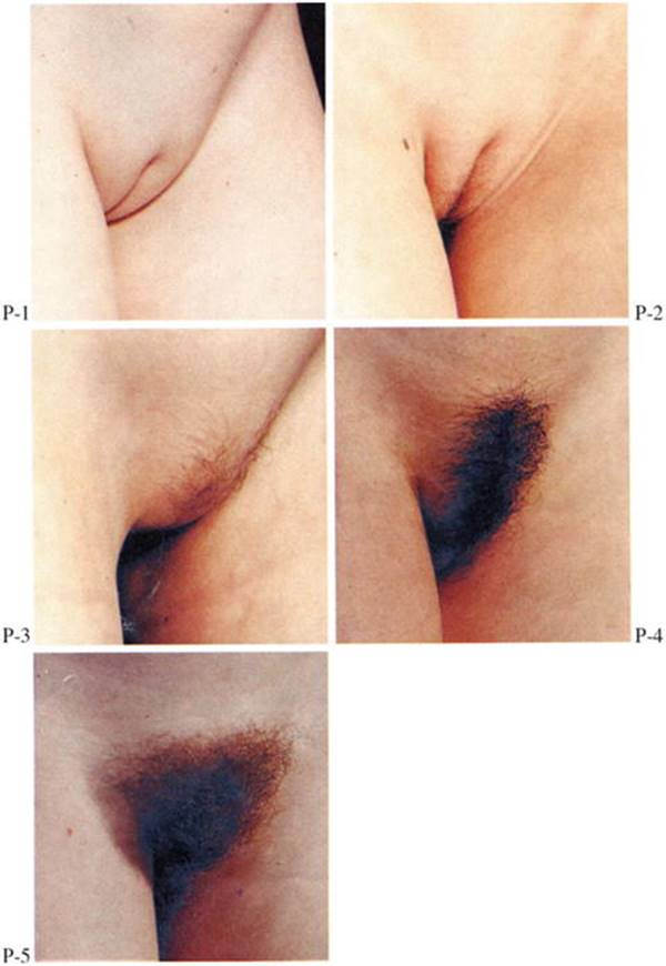 Sex image of early onset of pubic hair girls phone number