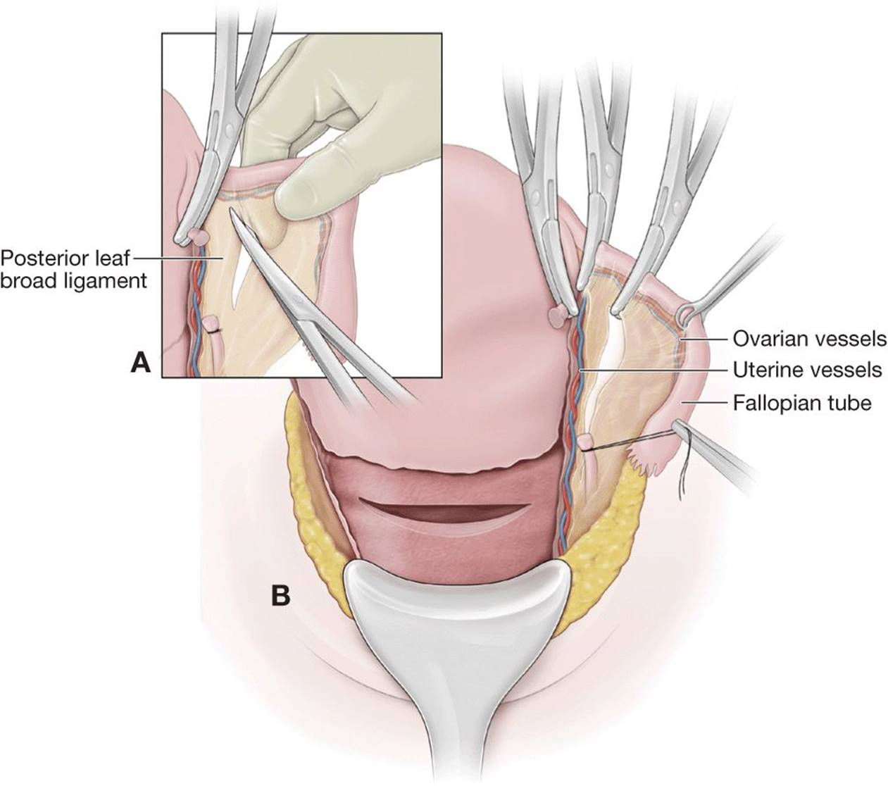 Hysterectomy Following Delivery - OBSTETRICAL COMPLICATIONS DUE TO ...