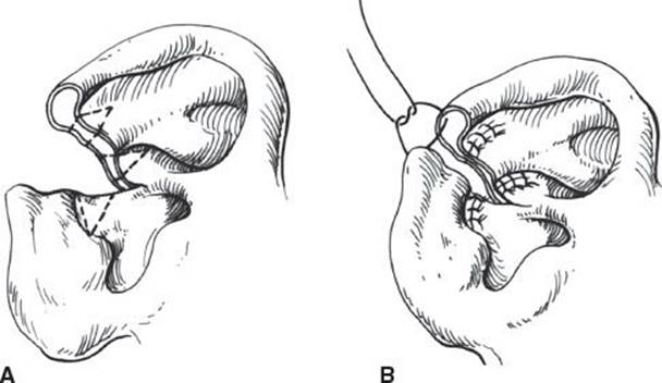 EAR RECONSTRUCTION - Grabb and Smith's Plastic Surgery