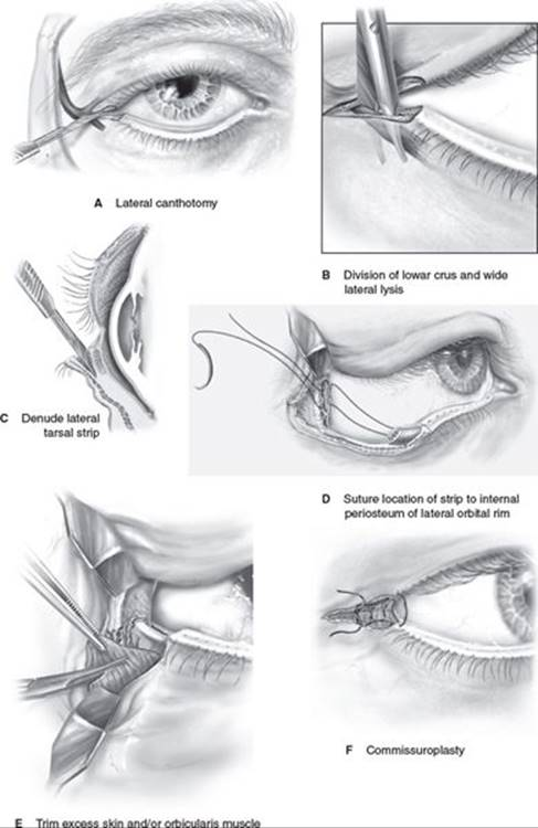 RECONSTRUCTION OF THE EYELIDS, CORRECTION OF PTOSIS, AND ...