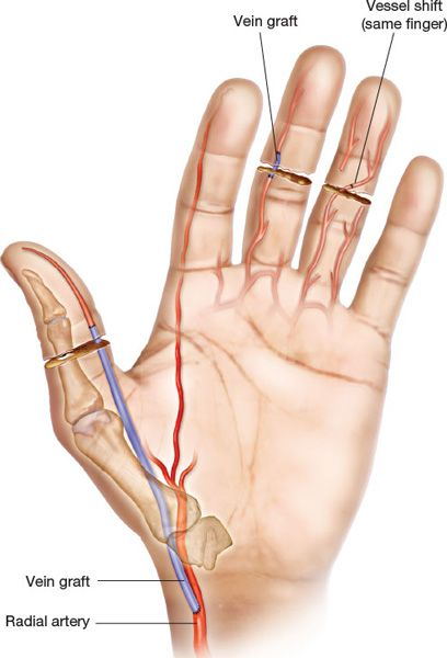 REPLANTATION STRATEGIES OF THE HAND AND UPPER EXTREMITY - Plastic