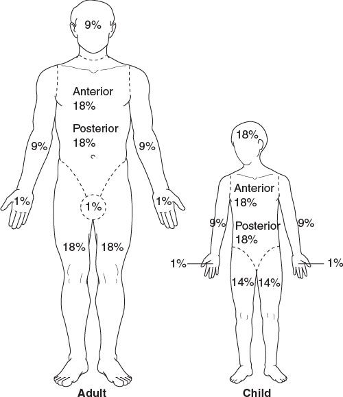 the rule of 9's provides a facile method of estimating total body surface  area burned  due to differences in body proportions, the percentage for  each body