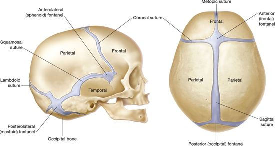 SINGLE-SUTURE CRANIOSYNOSTOSIS AND DEFORMATIONAL PLAGIOCEPHALY ...