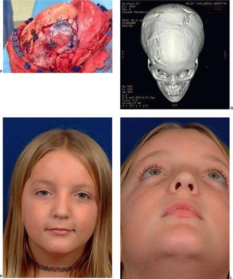 miscellaneous craniofacial conditions: fibrous dysplasia, moebius, Human Body