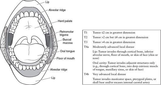 Retromolar Trigone Anatomy