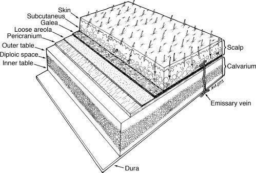 RECONSTRUCTION OF THE SCALP, CALVARIUM, AND FOREHEAD - Plastic surgery