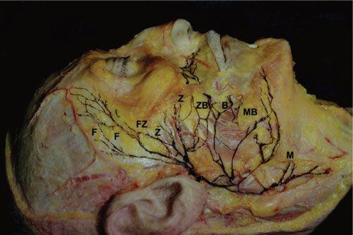 FACIAL PARALYSIS - Plastic surgery