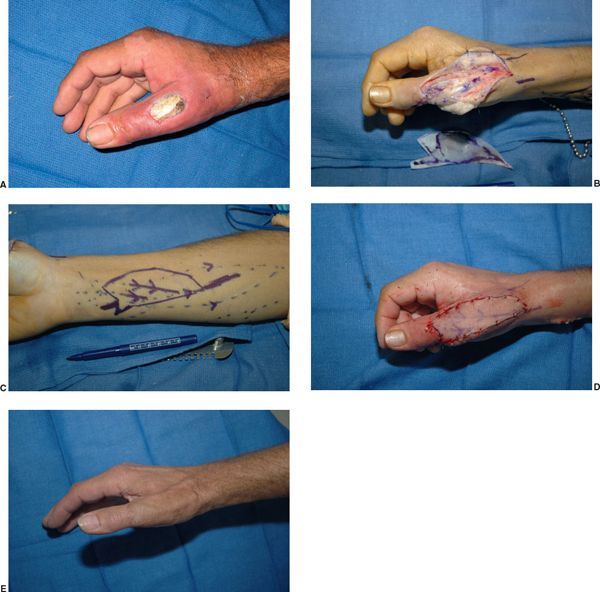 SOFT TISSUE RECONSTRUCTION OF THE UPPER EXTREMITY - Plastic surgery