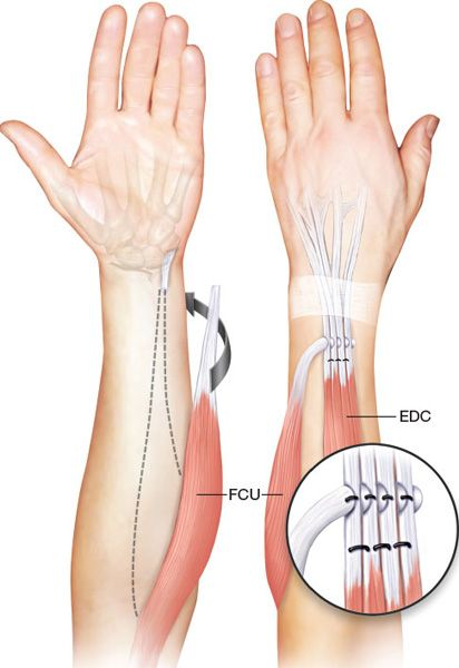 PRINCIPLES OF TENDON TRANSFERS - Plastic surgery