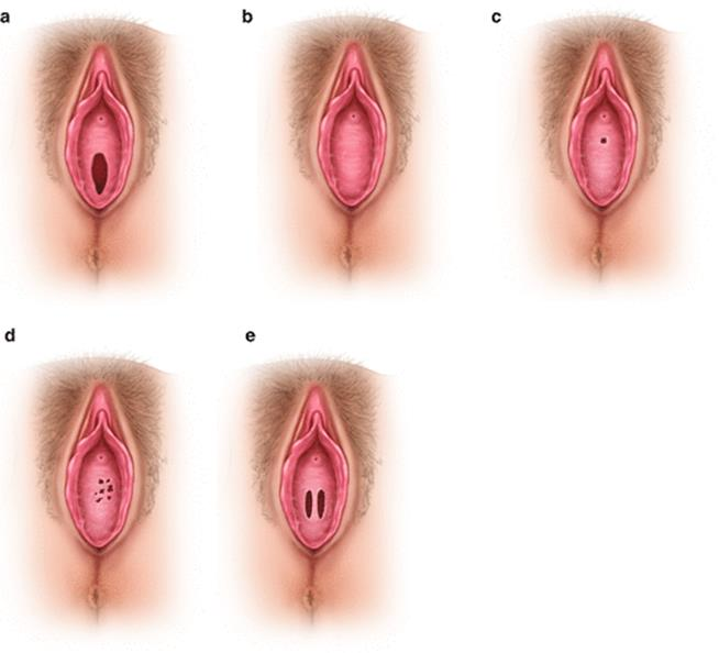 Sex septate hymen What is