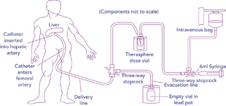 Gastrointestinal Brachytherapy Brachytherapy