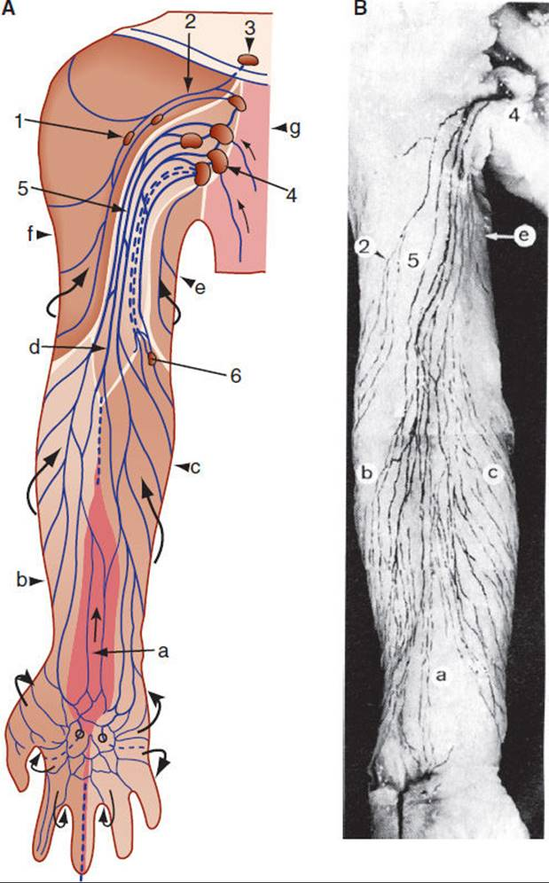 Physical Therapy Associated with Lymphatic System Disorders ...