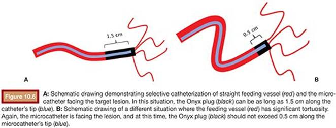 EVOH/DMSO in Peripheral Application - Embolic Materials