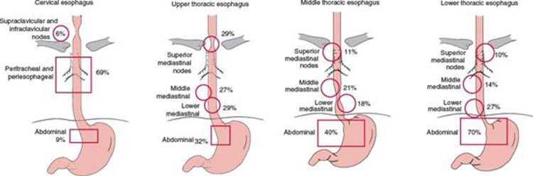 Esophagus practical essentials of intensity modulated radiation positive lymph node distribution according to the location of the primary tumor modified from akiyama h tsurumaru m kawamura t et al ccuart Image collections