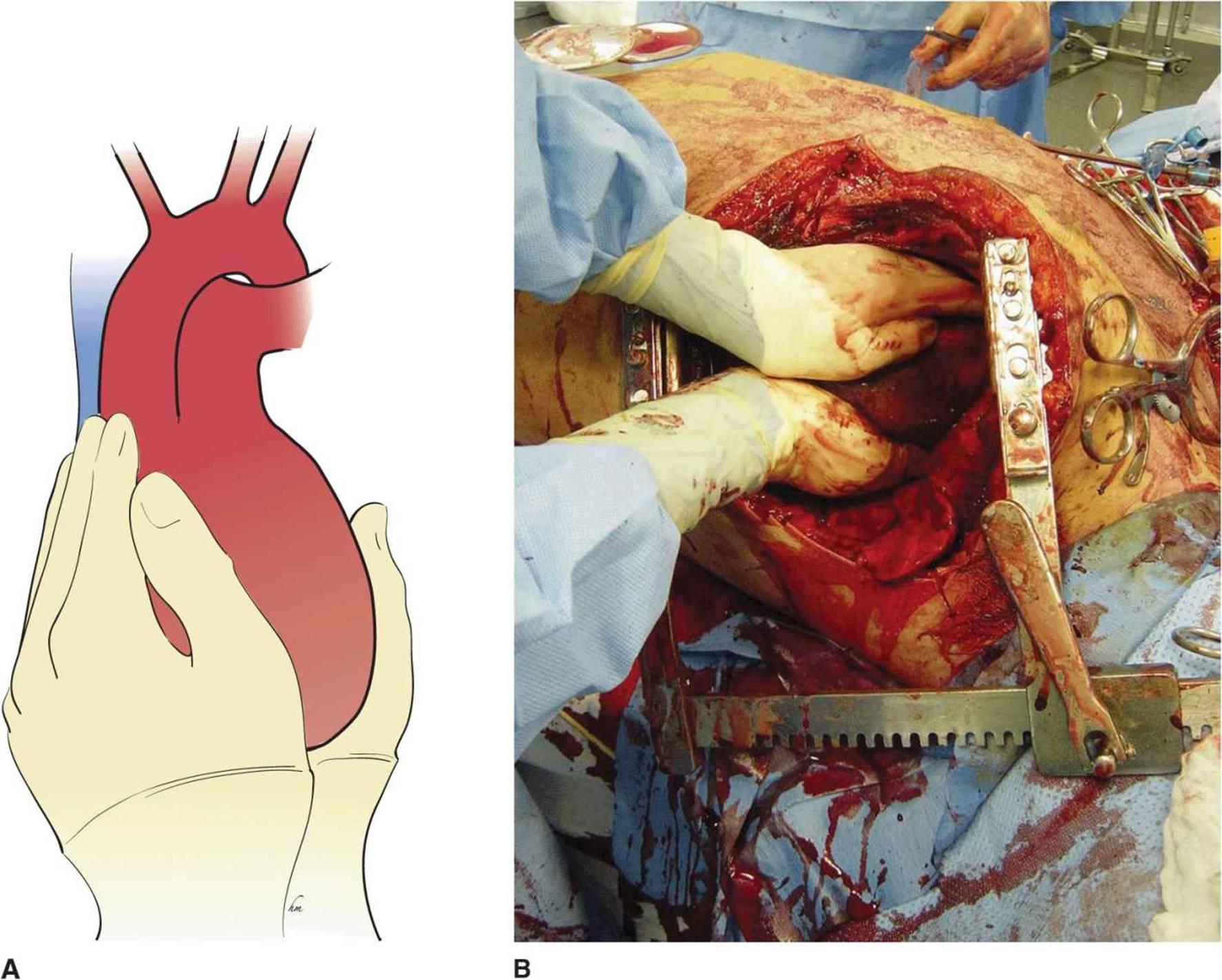Emergency Department Thoracotomy - Trauma, 7th Ed.