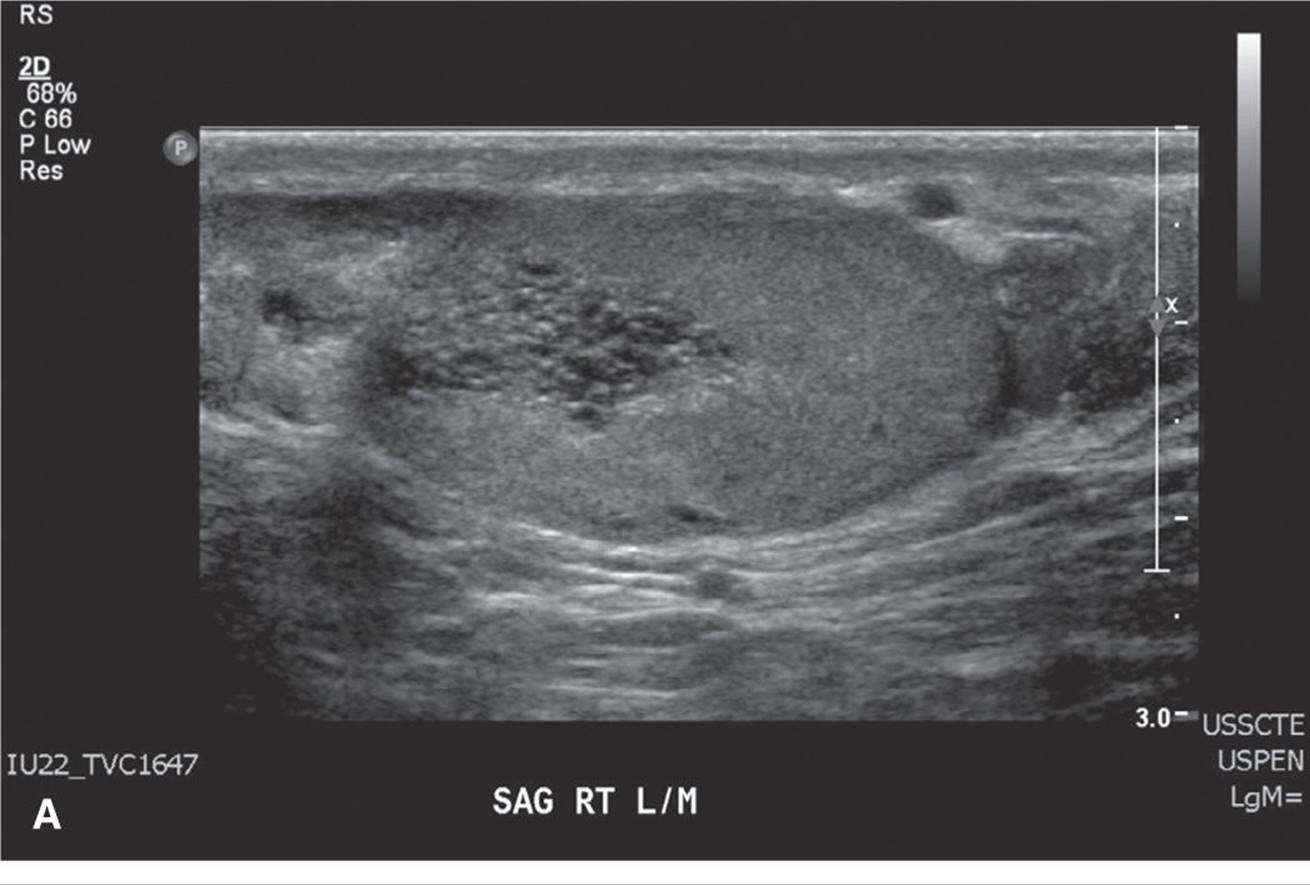 Case Studies 5 - Lange Review Ultrasonography Examination, 4th Edition