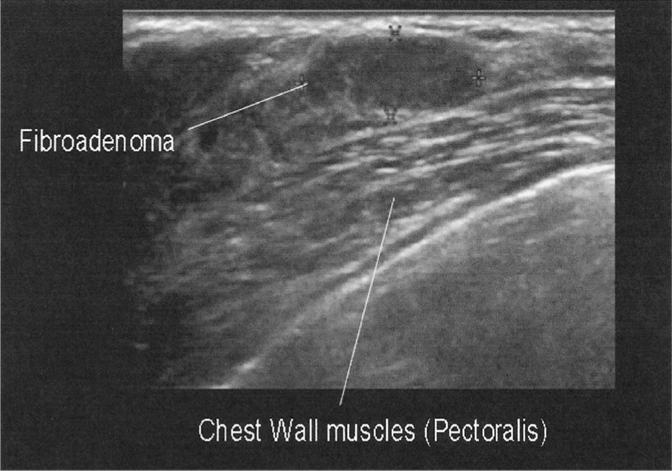 FIGURE 10–6. Typical appearance of the pectoralis muscle. Note the oval,  parallel, circumscribed mass. This proved to be a benign fibroadenoma.