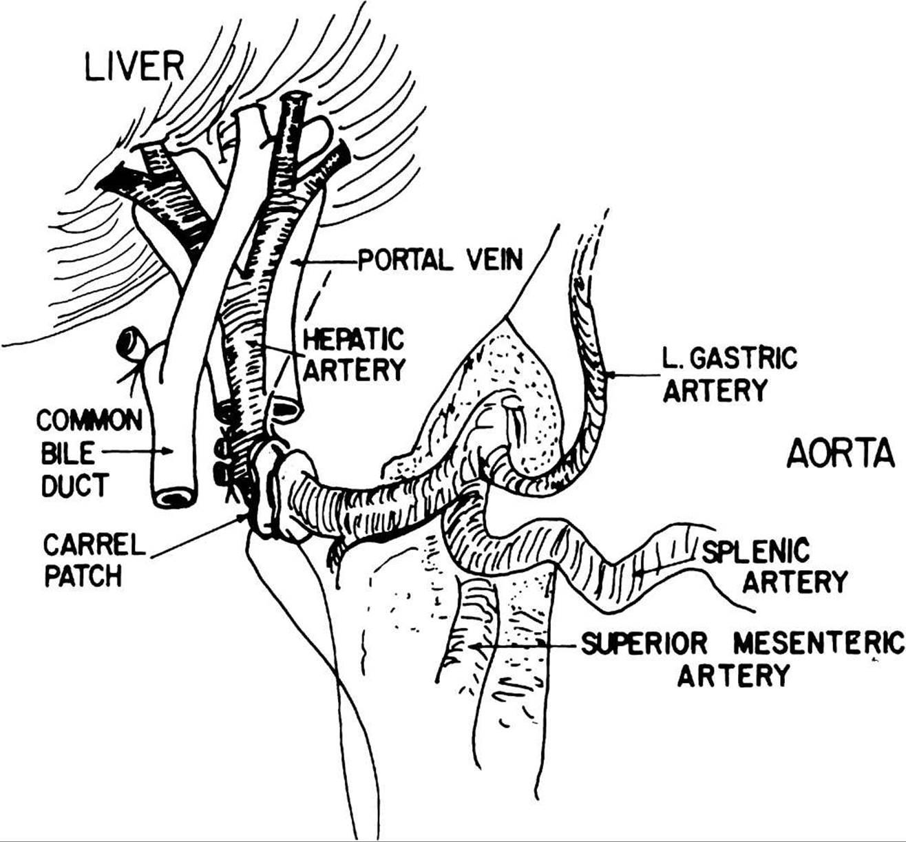 abdominal vascular sonography