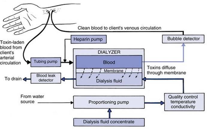 Principles of hemodialysis - Review of Hemodialysis for Nurses and