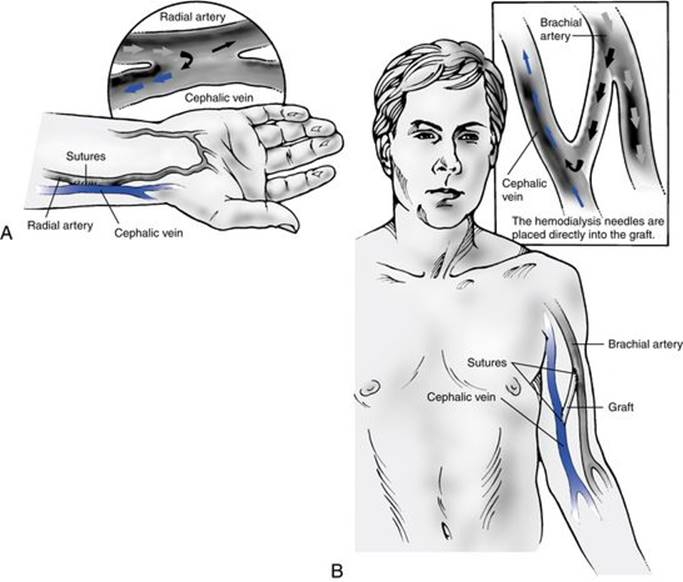 access to the bloodstream - review of hemodialysis for nurses and, Cephalic Vein